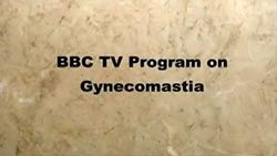 BBC Article - Life of Men Suffering from Gynecomastia