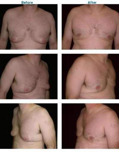 gynecomastia before and after Dr. Miguel Delgado